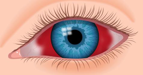 mancha roja en el ojo