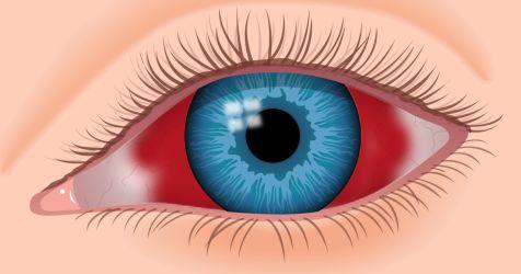Ilustración de sangre en el ojo