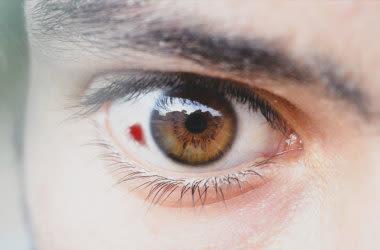 Mann mit Augenblutung