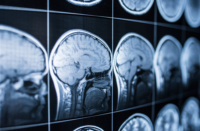 Do you know the symptoms of a concussion or traumatic brain injury?