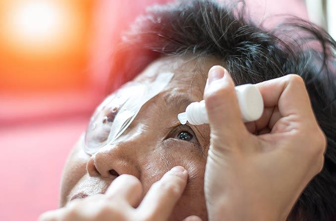 พยาบาลกำลังใช้ยาหยอดตาเพื่อรักษาโรคต้อกระจกในดวงตาของผู้ป่วยสูงอายุ