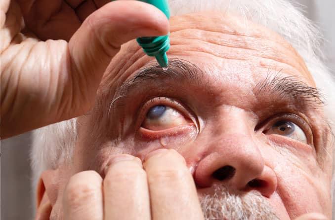 Человек, применяющий глазные капли от катаракты