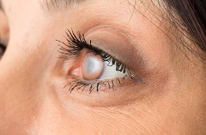 صورة مقربة لعين مصابة بإعتام عدسة العين