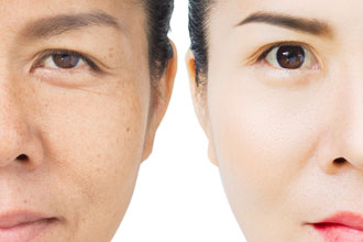 Asian eyelid surgery photo