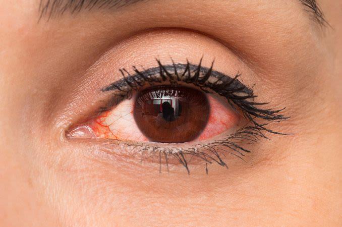 close-up de uma mulher com condição de olhos vermelhos