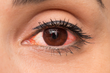 close-up of a woman with red eye