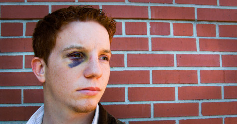 Black eye: Causes and treatment | All About Vision