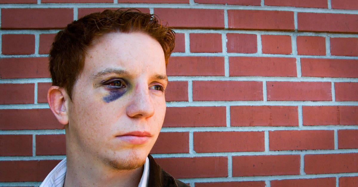 Adolescente branco e ruivo com olho roxo