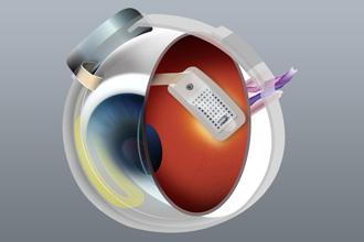 Argus II Retinal Prosthesis System 2