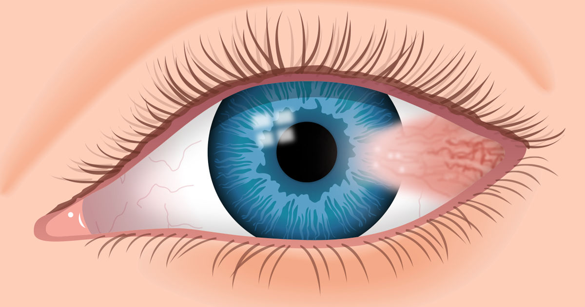 """Pterygium: What Is """"Surfer's Eye""""?"""