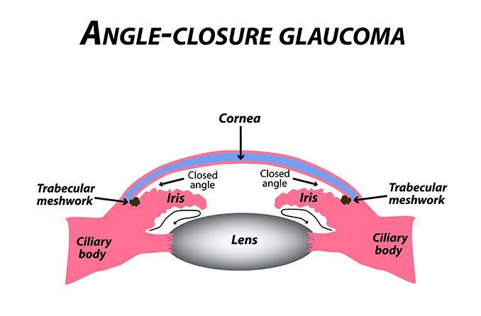 illustration of closed angle glaucoma