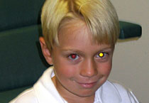 Boy with one red eye and one yellow eye
