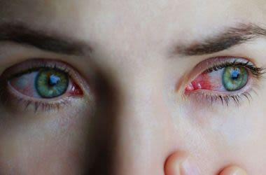 Irritated allergy eyes