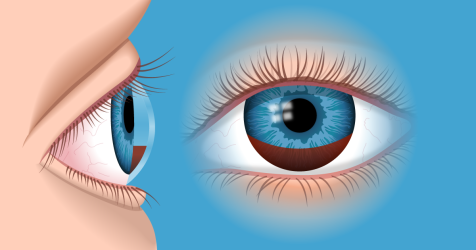 hyphema illustration