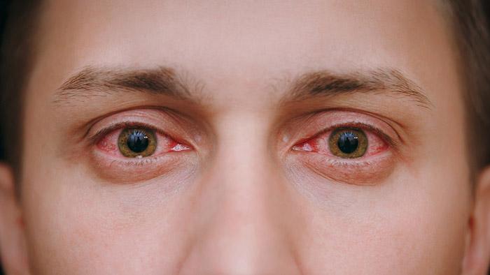 porque se ponen los ojos rojos al fumar mota