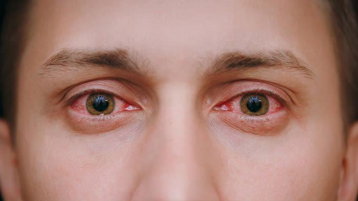 hombre con ojos rojos