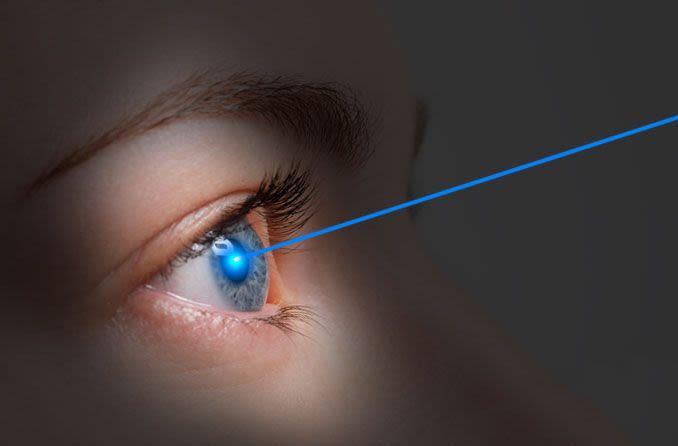 Person, die eine Lasik-Korrektur für Kurzsichtigkeit erhält