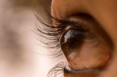 10 tratamentos do ceratocone - mais causas, sintomas