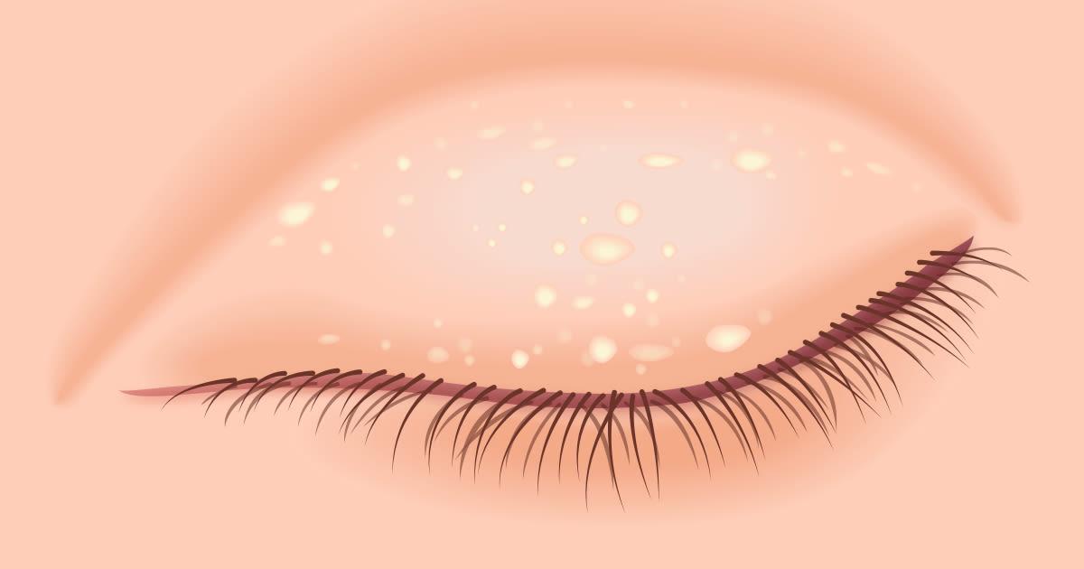 Illustration of milia on the eye lid.