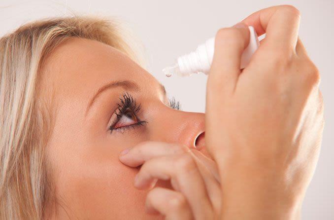 Frau, die Augentropfen zur Behandlung von Pink Eye anwendet