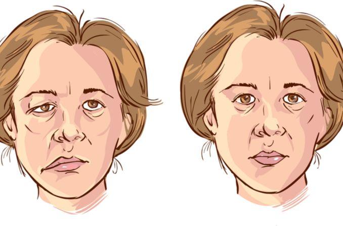 Illustration der Bellschen Lähmung