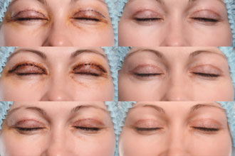 How long is eyelid surgery recovery photo