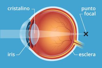 a4eb6259e8 El lente del ojo o cristalino se endurece con la edad, y por ello tendrá  menos capacidad de enfocar cuando usted mire algo de cerca.