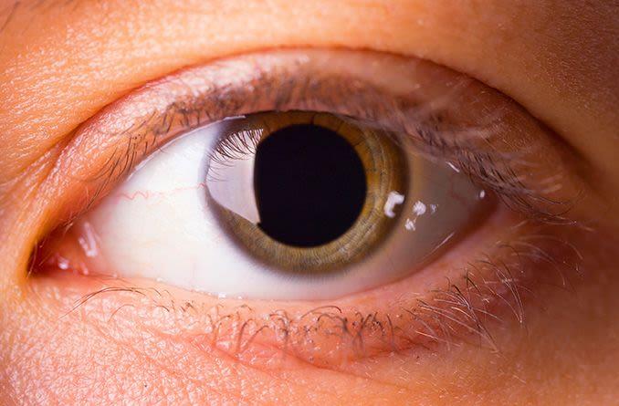 closeup of a dilated pupil