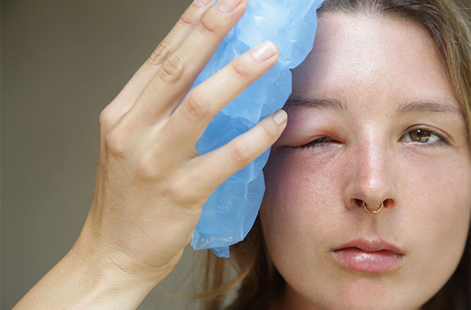 Swollen eyelid causes & how to treat a swollen eyelid