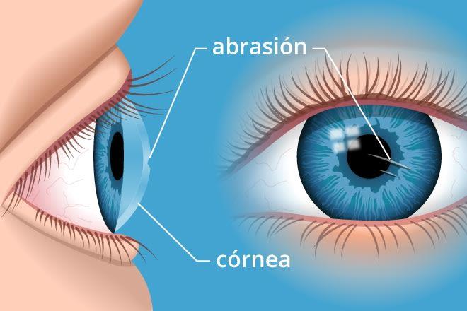 ilustração de uma abrasão da córnea