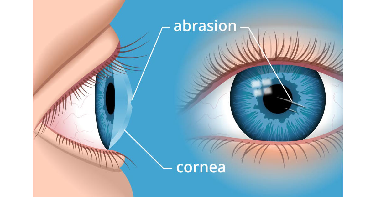 Illustration of a corneal abrasion