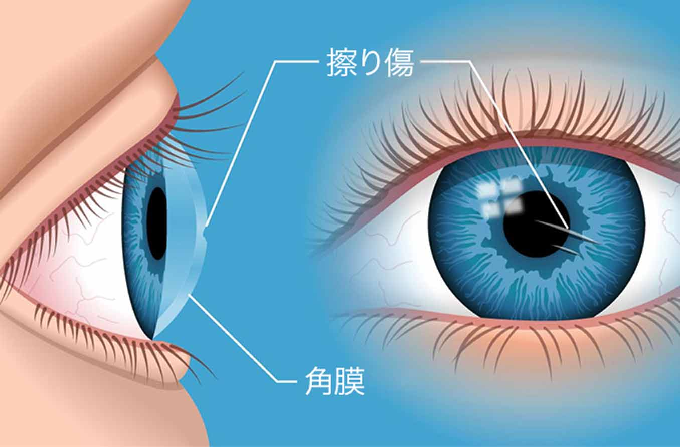 角膜剥離のイラスト