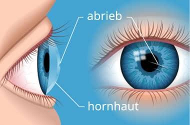 Bild eines Kratzers auf der Hornhaut des Auges