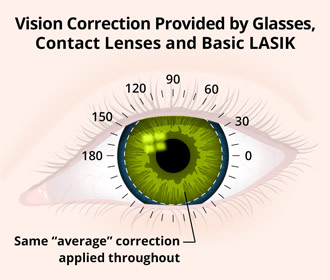 Vision Correction Provided by Glasses, Contact Lenses andBasic LASIK