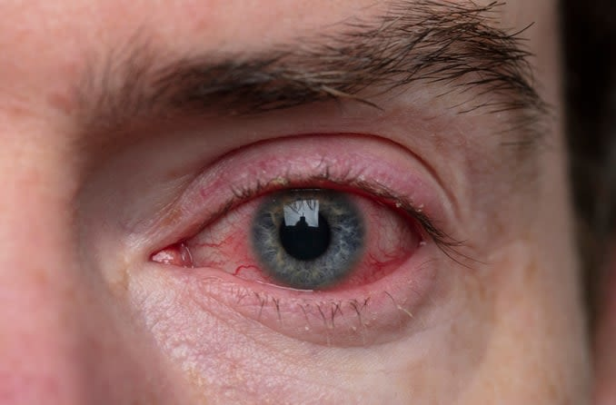 Close up of eye with conjunctivitis