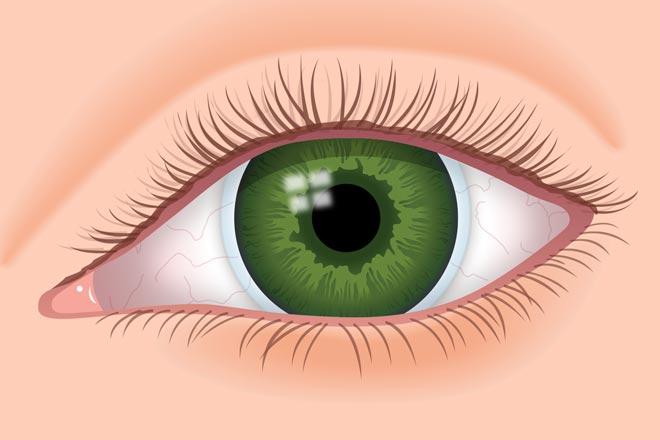 0373ebdf77 Lentes blandos (arriba): Los lentes blandos de hidrogel de silicona son  delgados y flexibles, cubren toda la córnea y una pequeña porción de la  esclerótica.