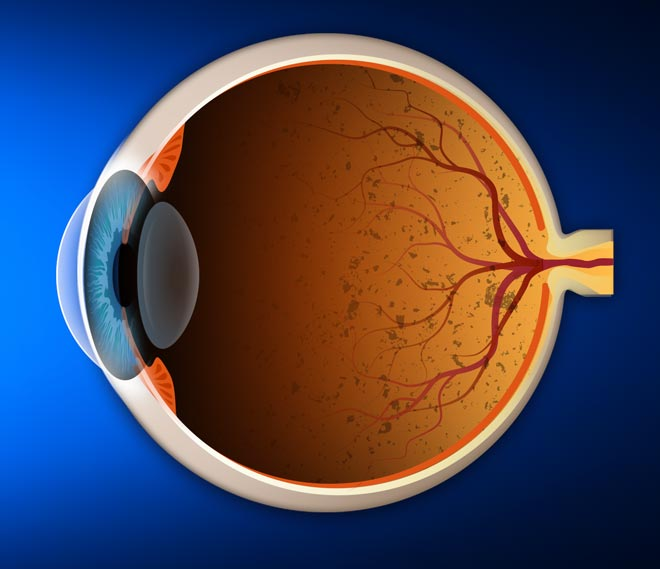 Retina diagram with retinitis pigmentosa in the back of the eye