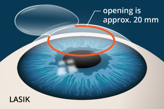 Lasik opening is approx. 20 mm
