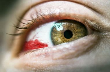 Blood hemorrhage in eye