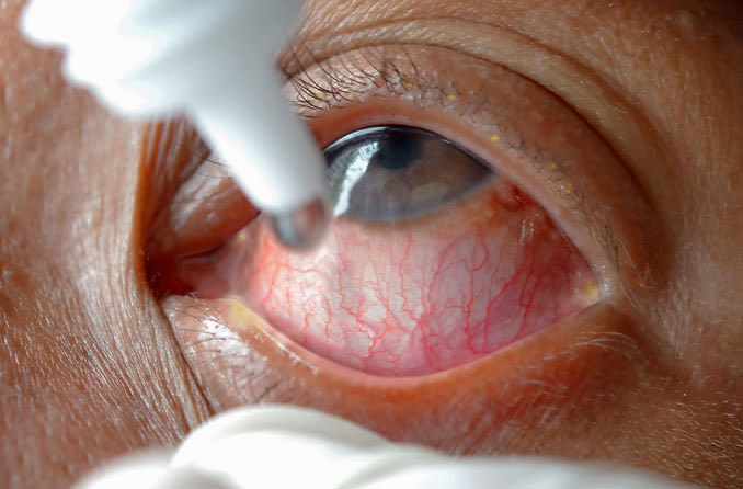 Conjunctivitis treatment