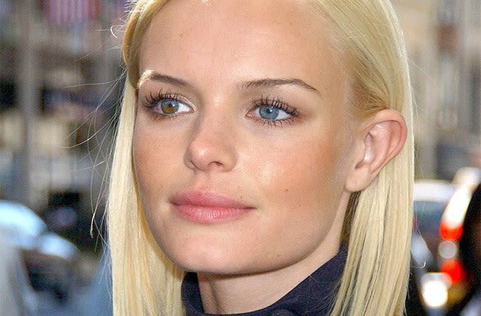 Kate Bosworth celebrity with heterochromia