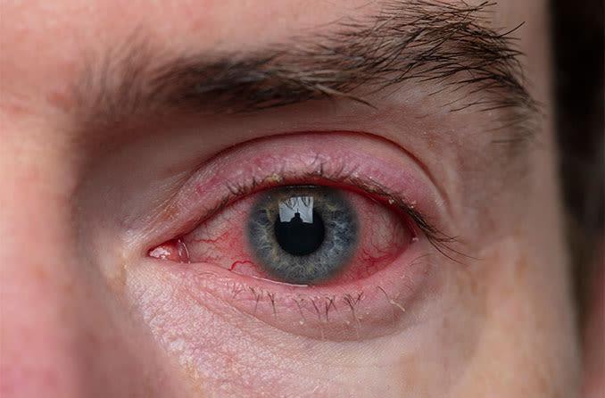 Mann mit Lidrandentzündung (Blepharitis)