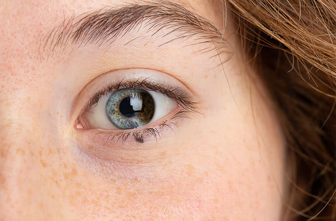 closeup of a woman's eye with partial or sectoral heterochromia