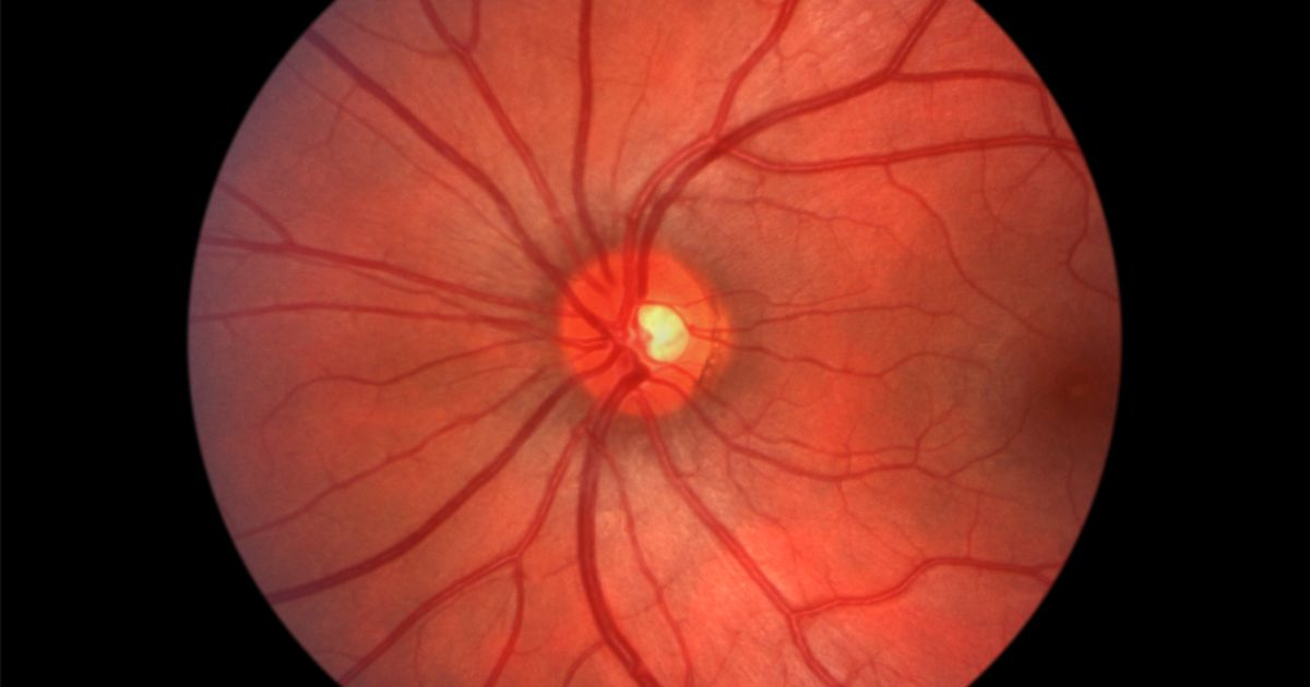 Image of the back of a healthy eye