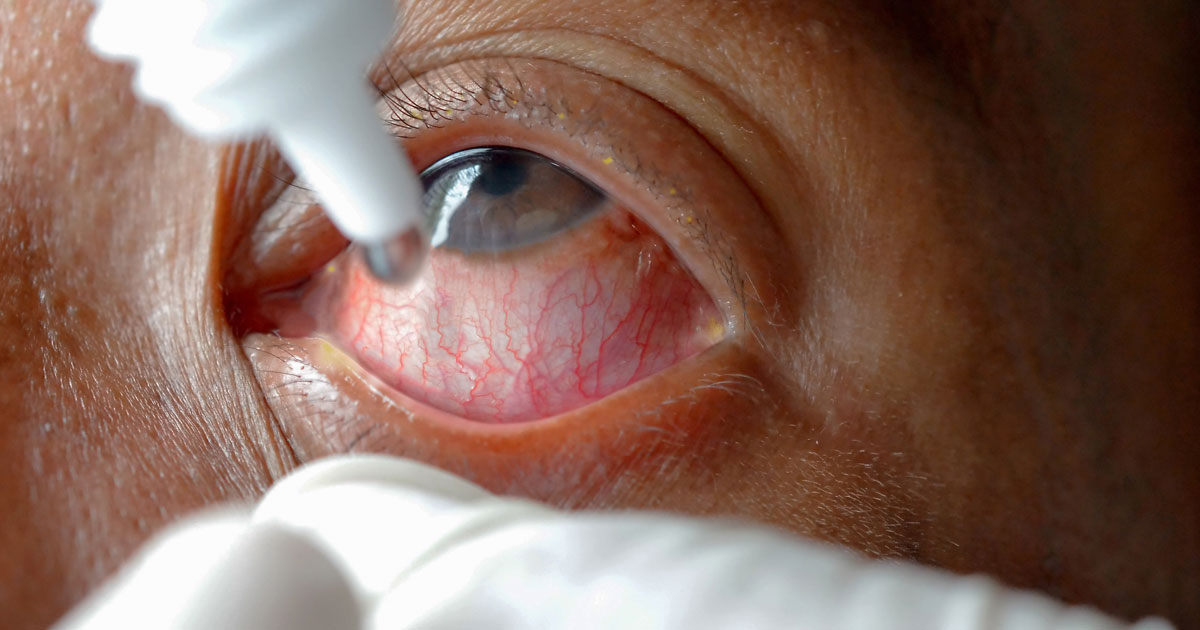 Pink Eye Remedies Conjunctivitis Treatment All About Vision