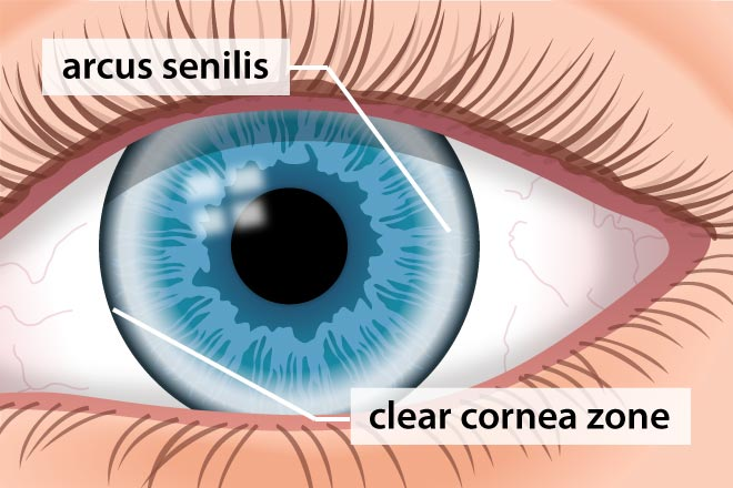 Cornea - Definition and Detailed Illustration