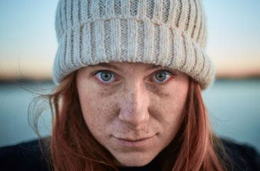 Red haired woman with irritated eyes