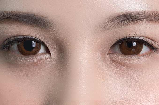 瞳孔不同の女性の目