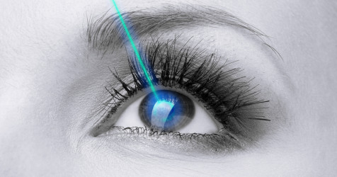 depiction of laser eye surgery