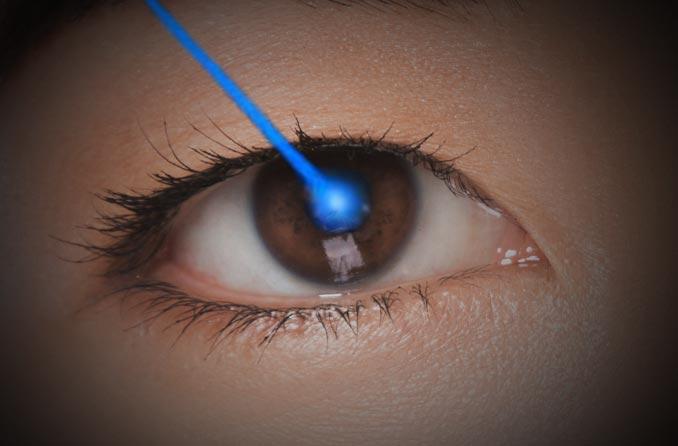 レーザー眼科手術の描写